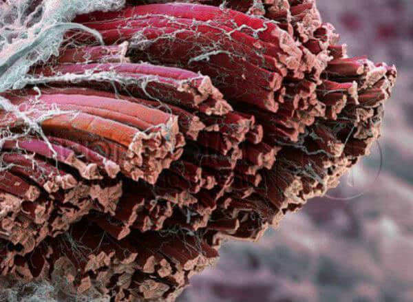 Крепатура. Мышечная боль